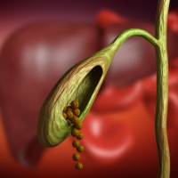 Remedios para cálculos biliares o piedras en la vesícula